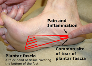 foot pain fasciitis plantar