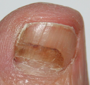Photos of a damaged toenail and new toenail slowly growing up
