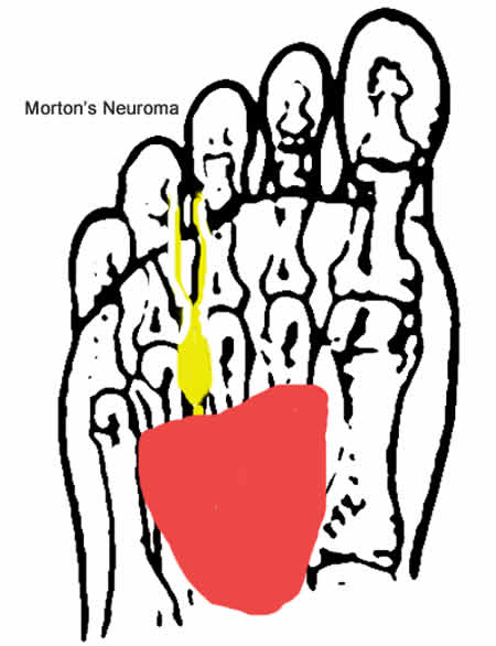 Morton's Neuroma metatarsal pad